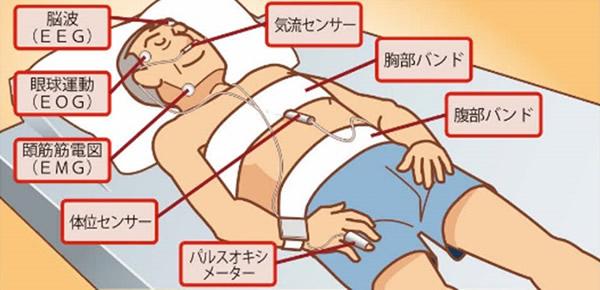 精密検査「終夜睡眠ポリグラフ(PSG検査)」