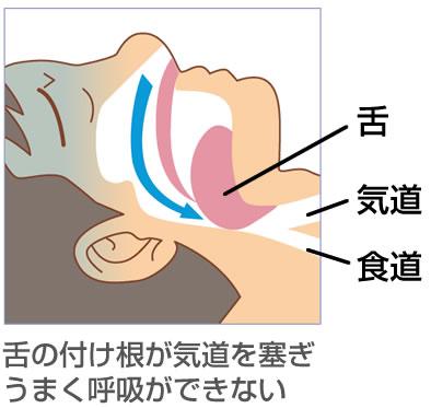 舌の付け根が気道を塞ぎ うまく呼吸ができない